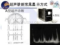 超声影像学多普勒血流显像